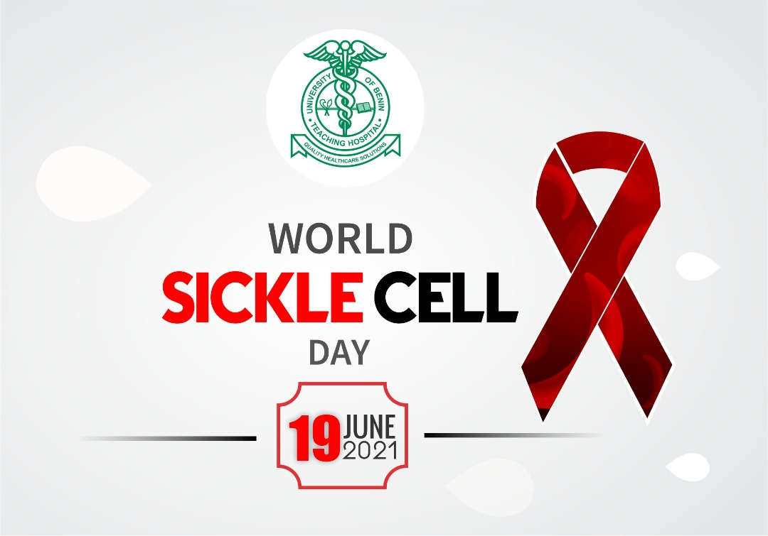 world-sickle-cell-day-ubth-2021.jpeg